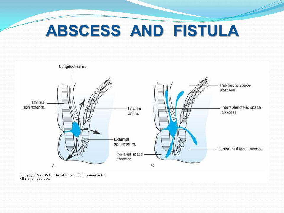 ABSCESS AND FISTULA