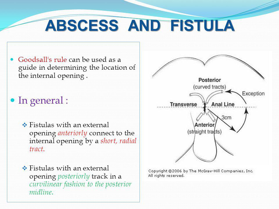 ABSCESS AND FISTULA In general :