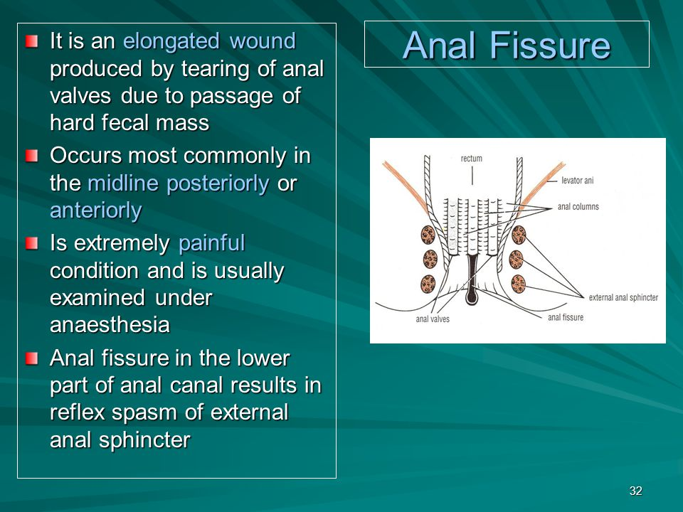 It is an elongated wound produced by tearing of anal valves due to passage of hard fecal mass
