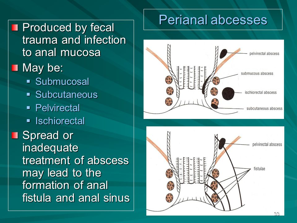 Perianal abcesses Produced by fecal trauma and infection to anal mucosa. May be: Submucosal. Subcutaneous.