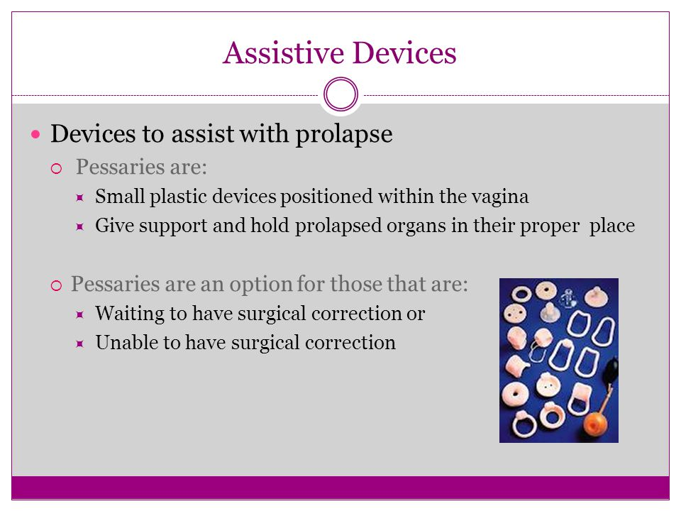 Assistive Devices Devices to assist with prolapse