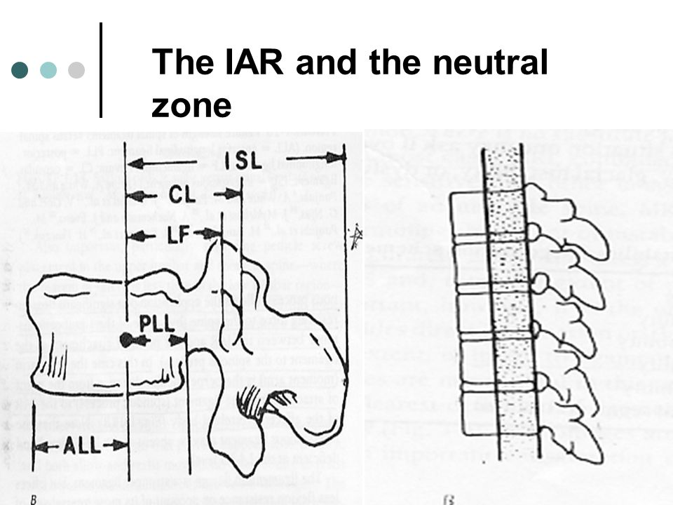 The IAR and the neutral zone