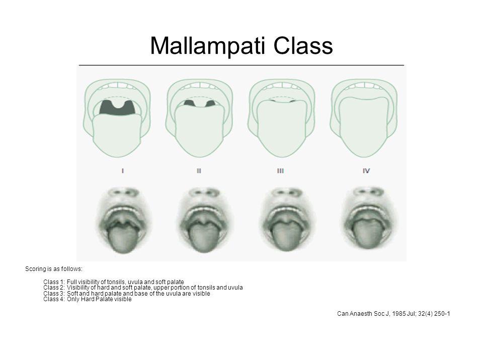Mallampati Class Scoring is as follows: