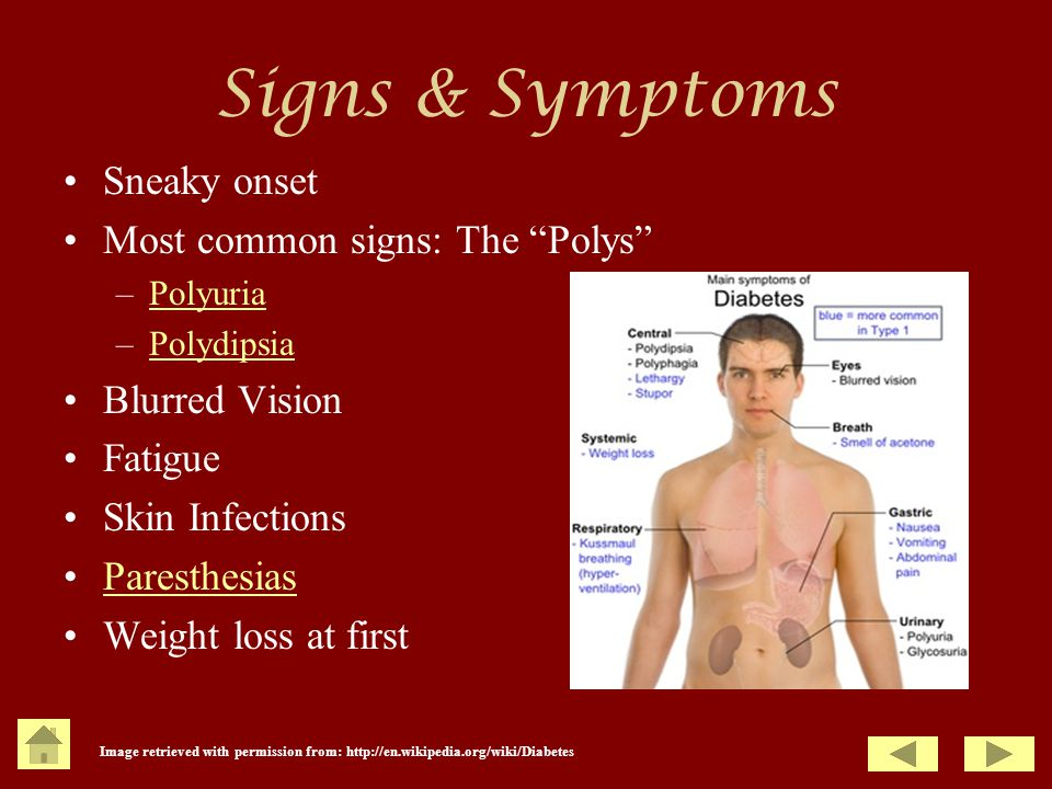 Signs & Symptoms Sneaky onset Most common signs: The Polys