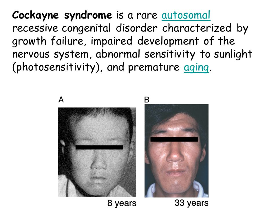 Cockayne syndrome is a rare autosomal recessive congenital disorder characterized by growth failure, impaired development of the nervous system, abnormal sensitivity to sunlight (photosensitivity), and premature aging.