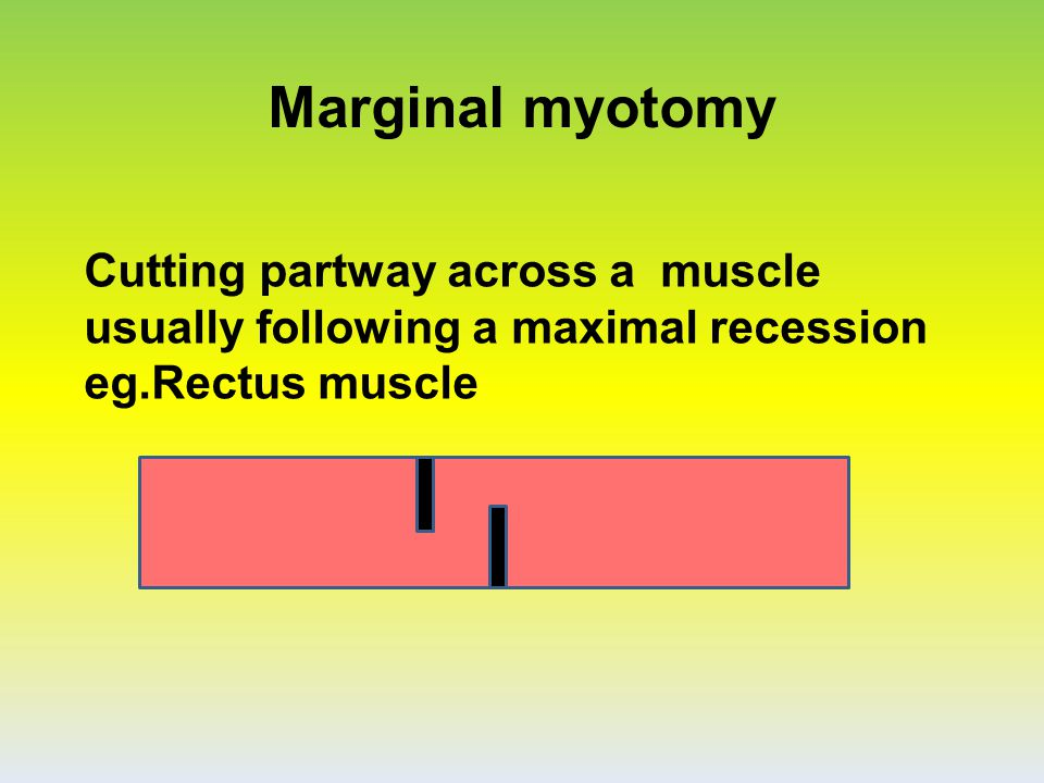Marginal myotomy Cutting partway across a muscle usually following a maximal recession eg.Rectus muscle.