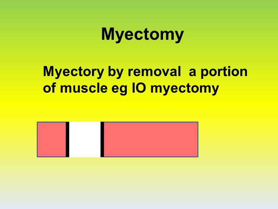 Myectomy Myectory by removal a portion of muscle eg IO myectomy