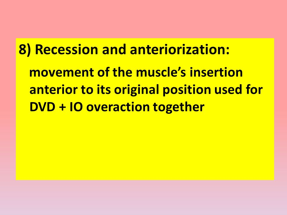 8) Recession and anteriorization: movement of the muscle's insertion anterior to its original position used for DVD + IO overaction together