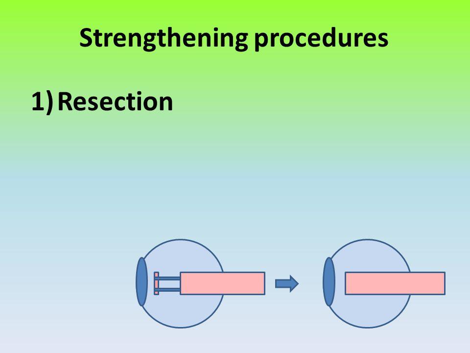 Strengthening procedures
