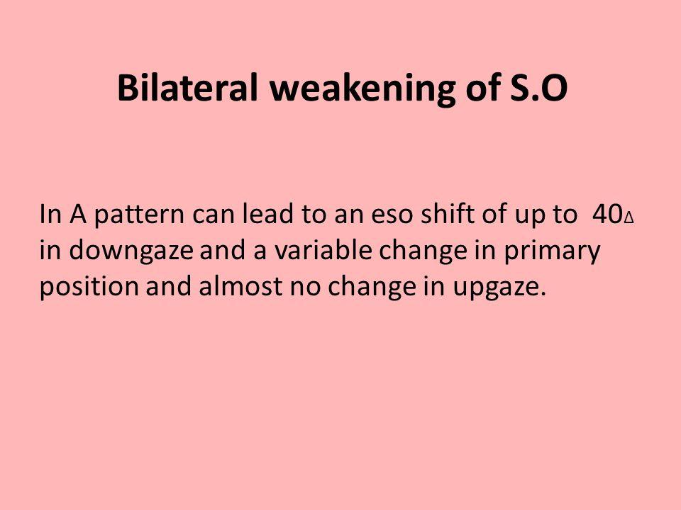 Bilateral weakening of S.O