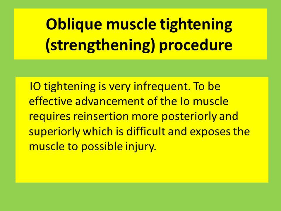 Oblique muscle tightening (strengthening) procedure