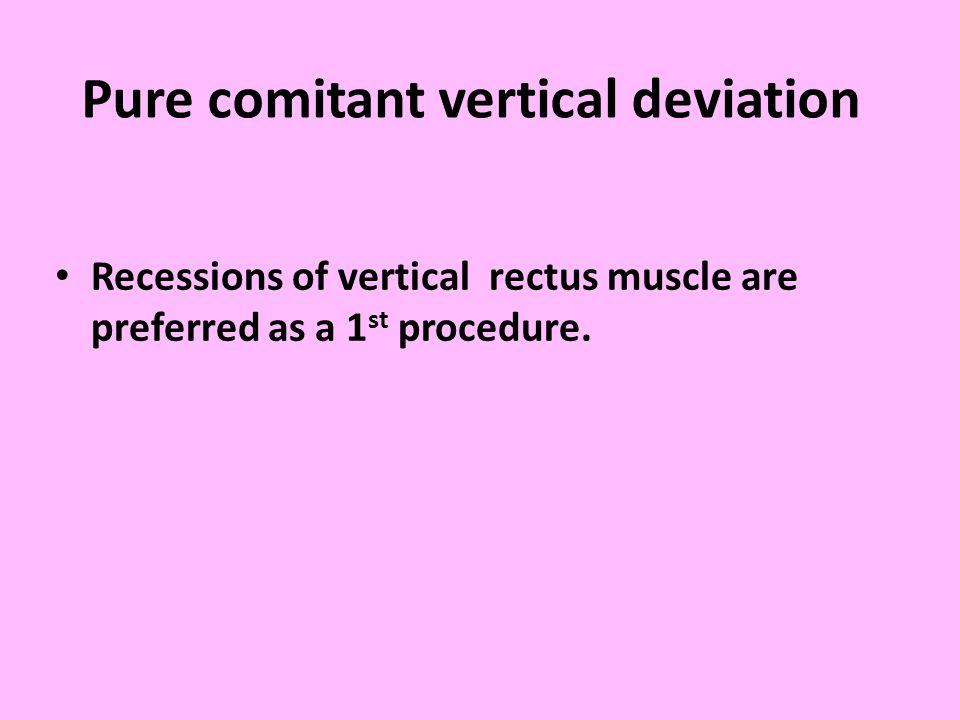Pure comitant vertical deviation