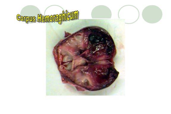 Corpus Hemoraghicum