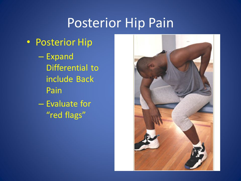 Posterior Hip Pain Posterior Hip