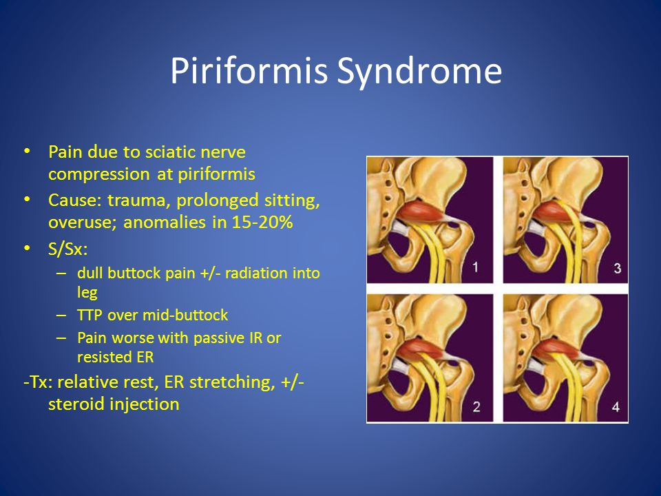 Piriformis Syndrome Pain due to sciatic nerve compression at piriformis. Cause: trauma, prolonged sitting, overuse; anomalies in 15-20%