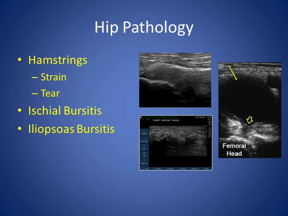 Hip Pathology Hamstrings Ischial Bursitis Iliopsoas Bursitis Strain
