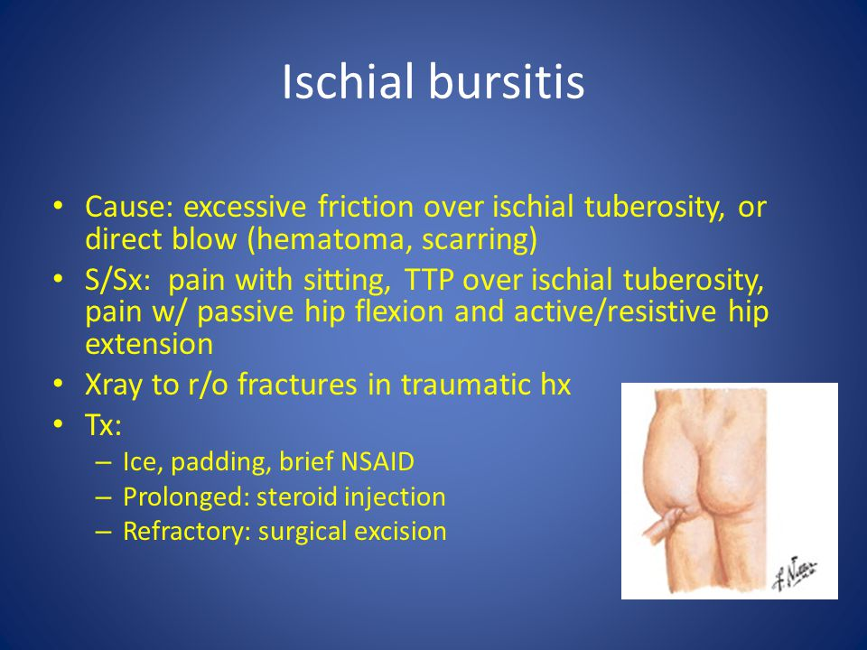 Ischial bursitis Cause: excessive friction over ischial tuberosity, or direct blow (hematoma, scarring)