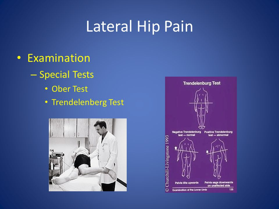 Lateral Hip Pain Examination Special Tests Ober Test