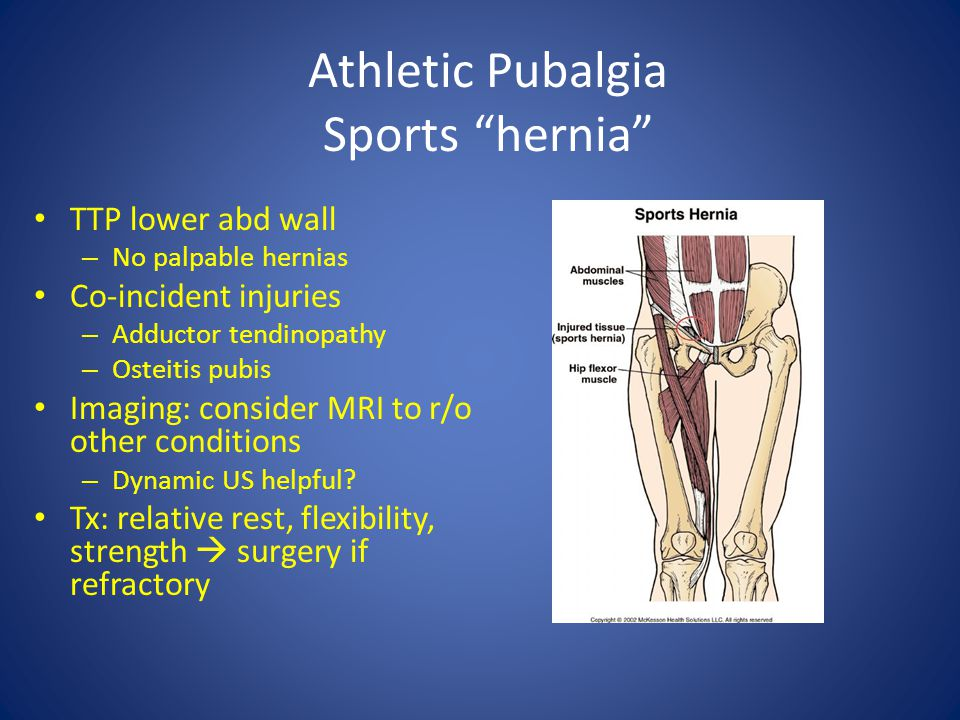 Athletic Pubalgia Sports hernia