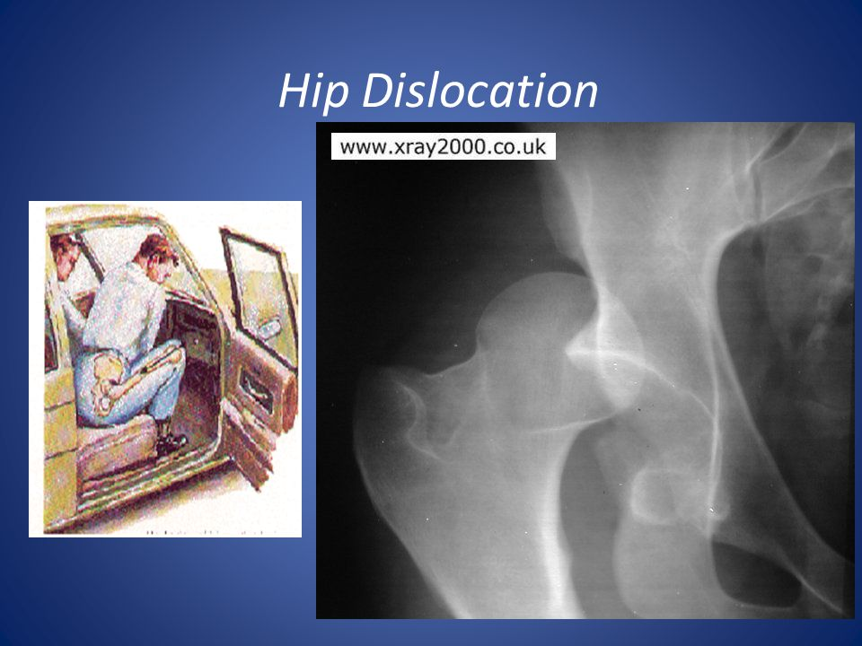 Hip Dislocation Femoral head usually goes posteriorly
