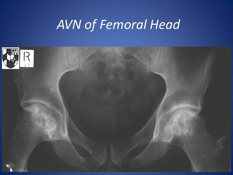 AVN of Femoral Head Causes: