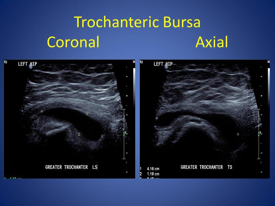 Trochanteric Bursa Coronal Axial