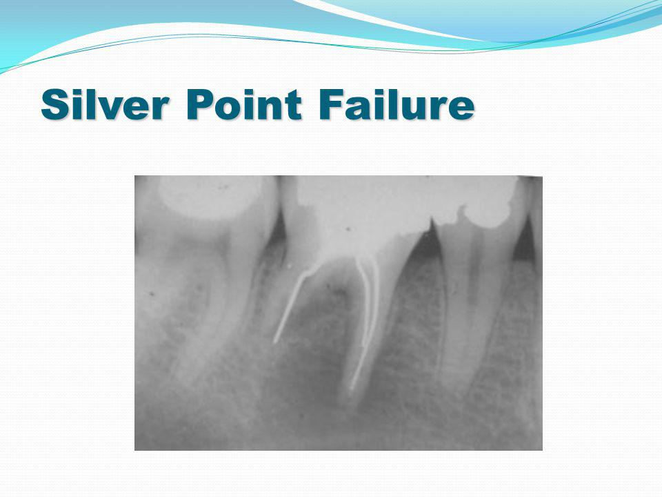 Silver Point Failure 9 9