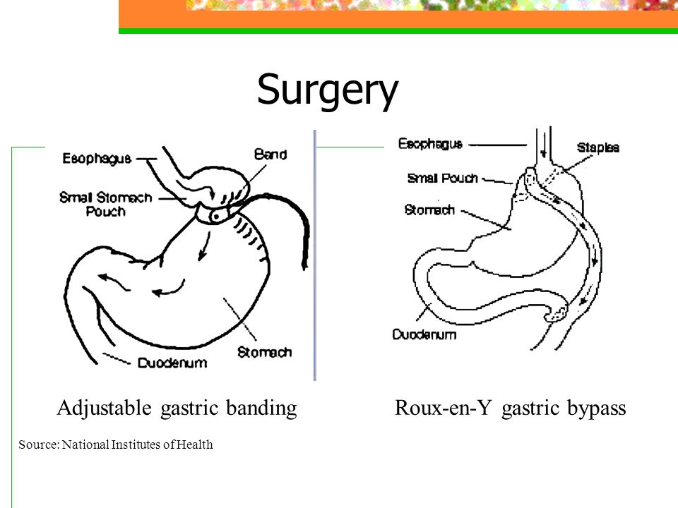 Surgery Adjustable gastric banding Roux-en-Y gastric bypass