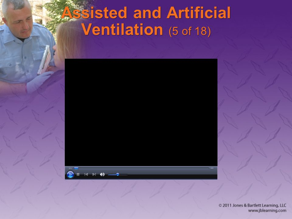 Assisted and Artificial Ventilation (5 of 18)