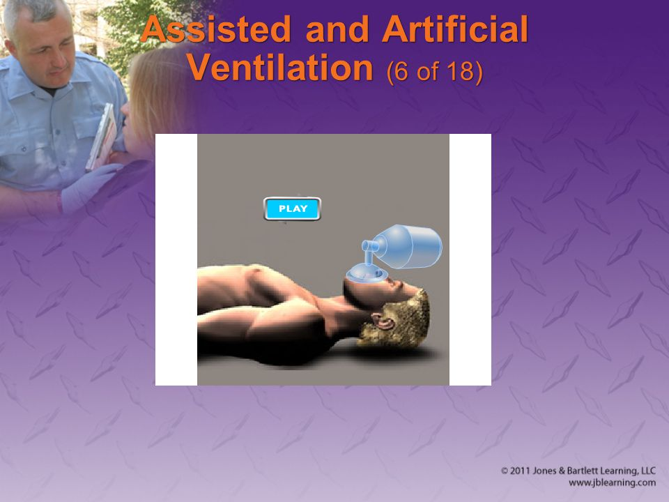 Assisted and Artificial Ventilation (6 of 18)