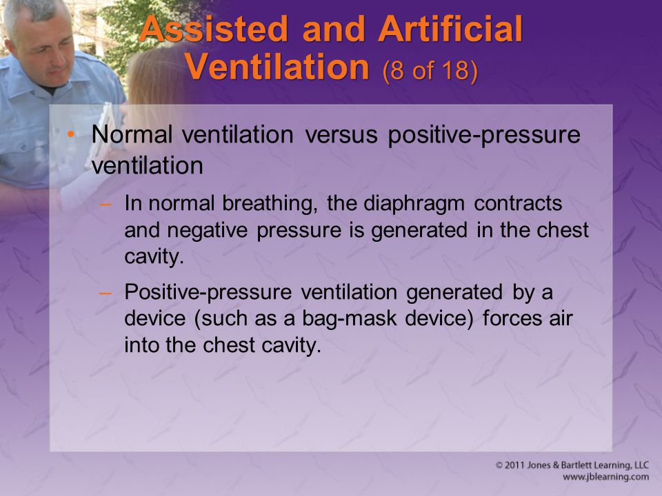 Assisted and Artificial Ventilation (8 of 18)