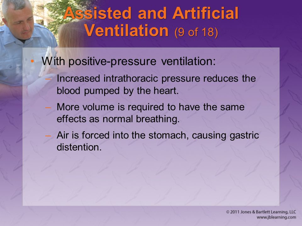 Assisted and Artificial Ventilation (9 of 18)