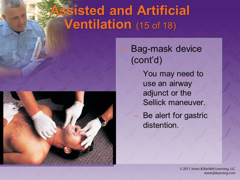 Assisted and Artificial Ventilation (15 of 18)