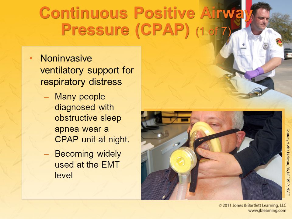 Continuous Positive Airway Pressure (CPAP) (1 of 7)