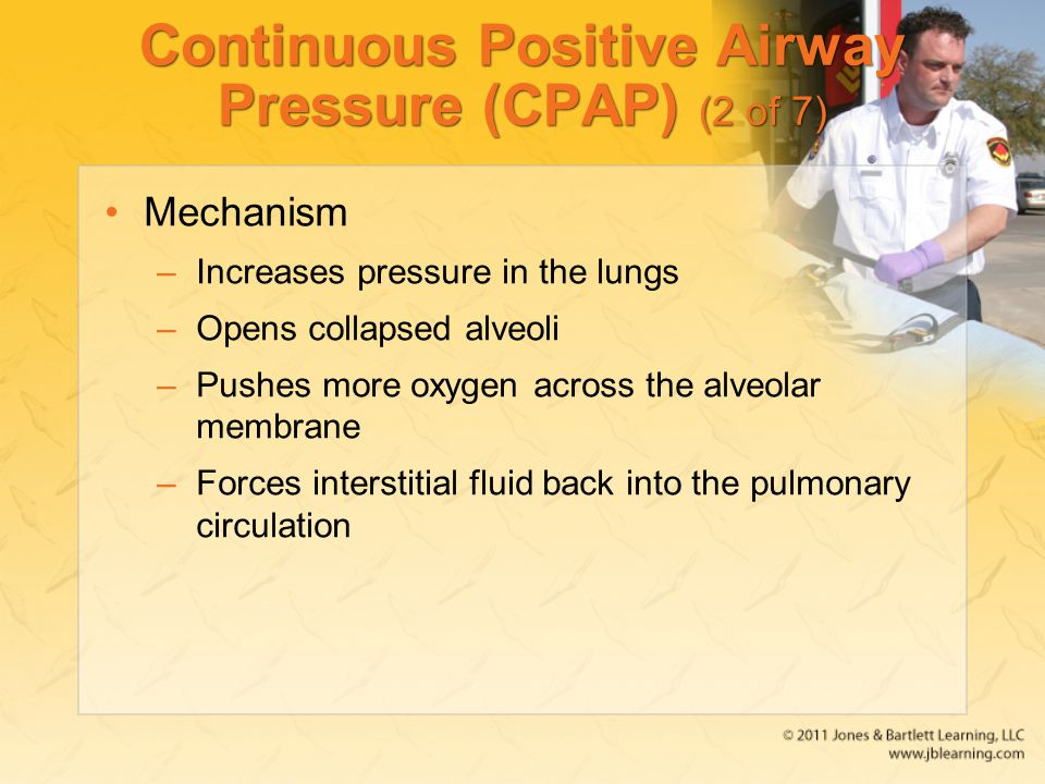 Continuous Positive Airway Pressure (CPAP) (2 of 7)