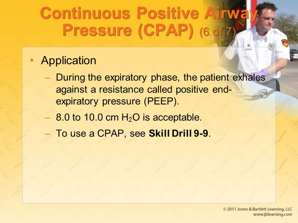 Continuous Positive Airway Pressure (CPAP) (6 of 7)
