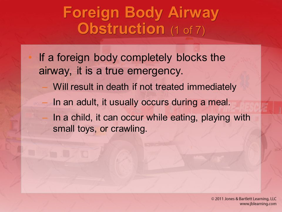 Foreign Body Airway Obstruction (1 of 7)