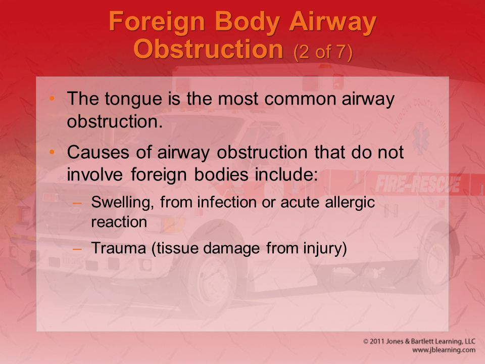Foreign Body Airway Obstruction (2 of 7)