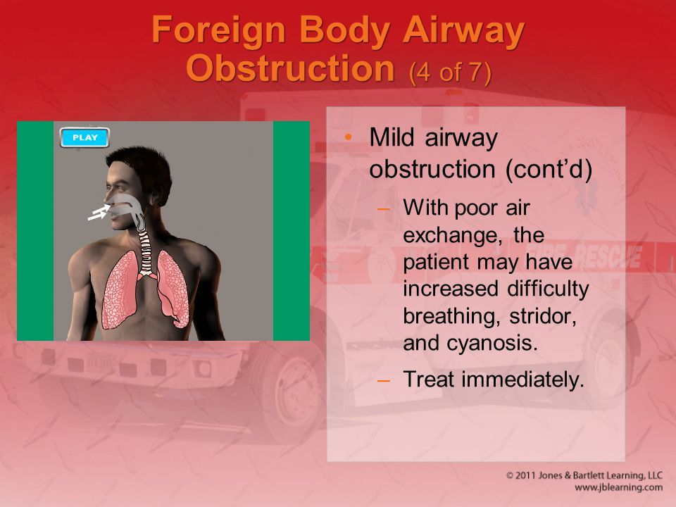 Foreign Body Airway Obstruction (4 of 7)