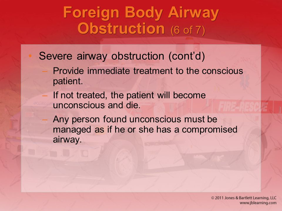 Foreign Body Airway Obstruction (6 of 7)
