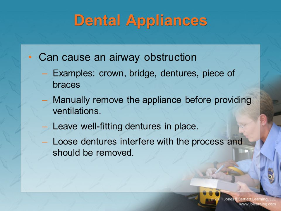 Dental Appliances Can cause an airway obstruction