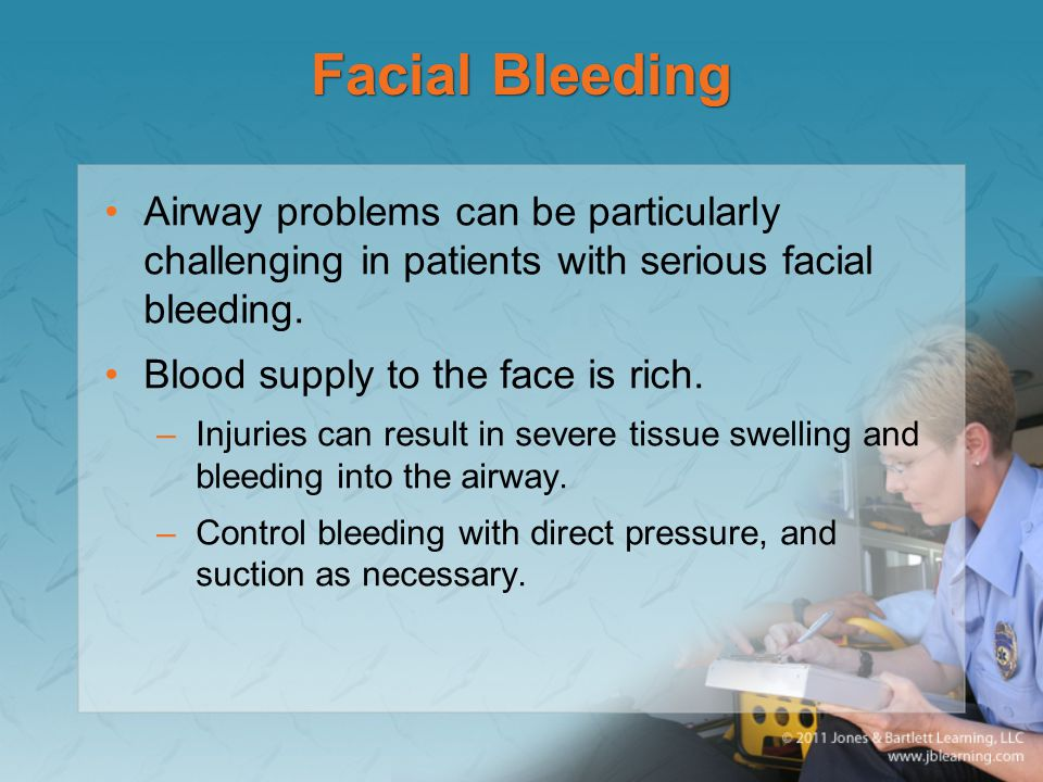 Facial Bleeding Airway problems can be particularly challenging in patients with serious facial bleeding.