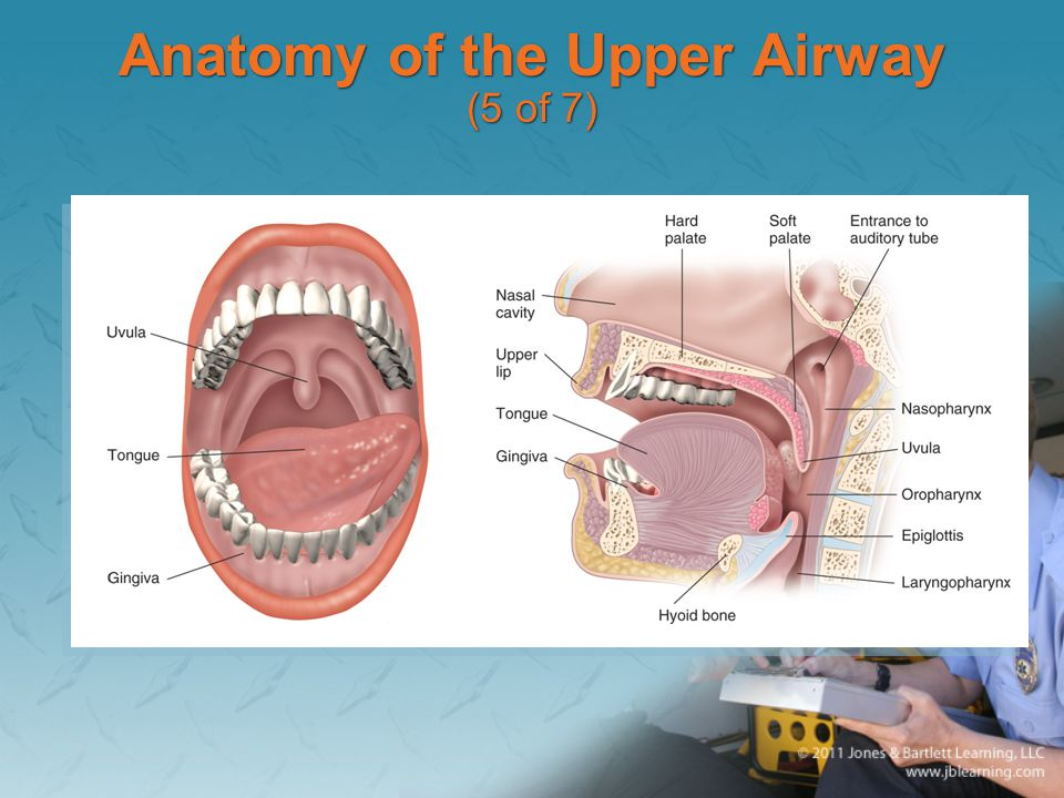 Anatomy of the Upper Airway (5 of 7)