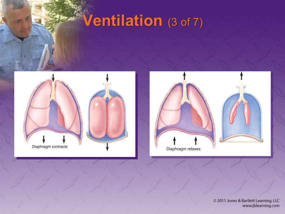 Ventilation (3 of 7)