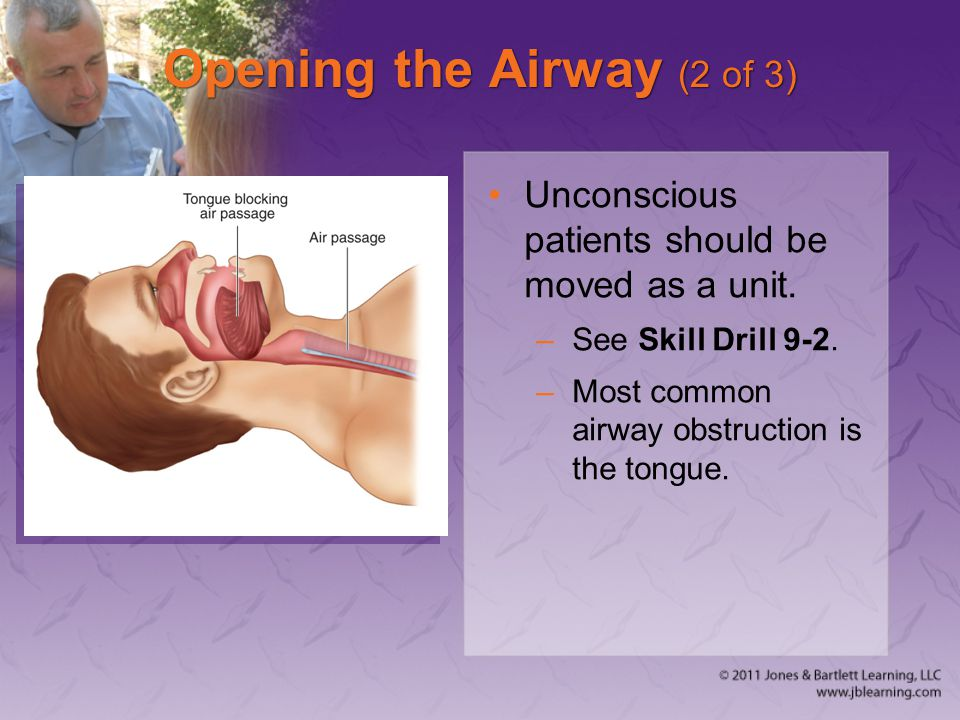 Opening the Airway (2 of 3)