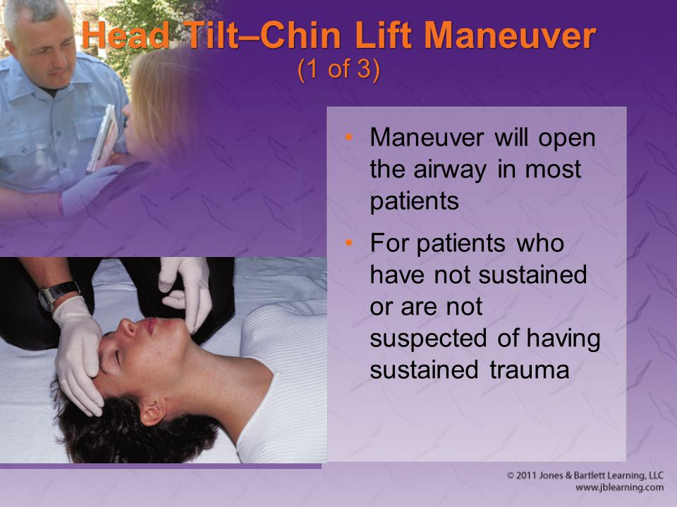Head Tilt–Chin Lift Maneuver (1 of 3)