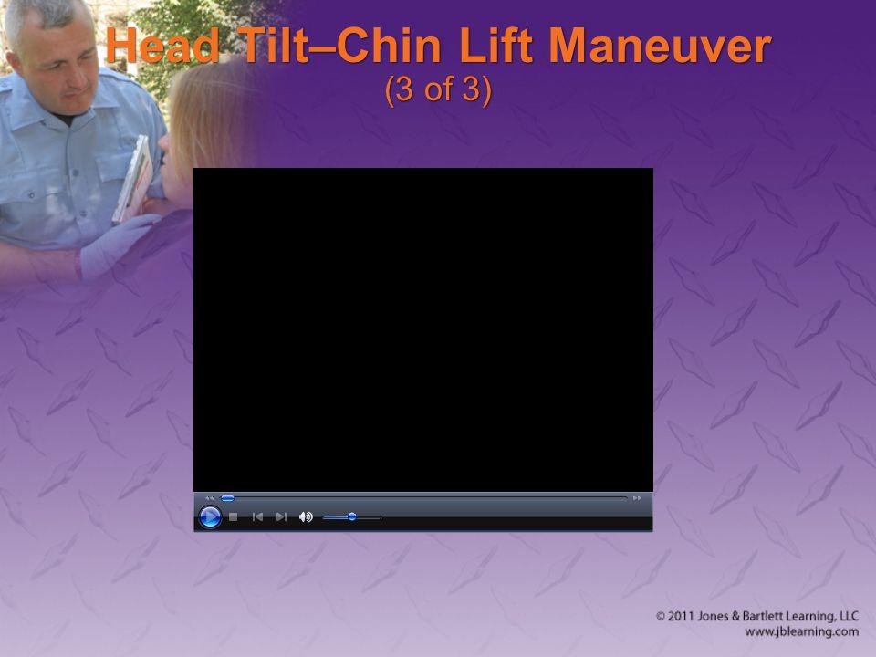 Head Tilt–Chin Lift Maneuver (3 of 3)