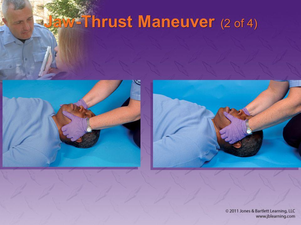 Jaw-Thrust Maneuver (2 of 4)