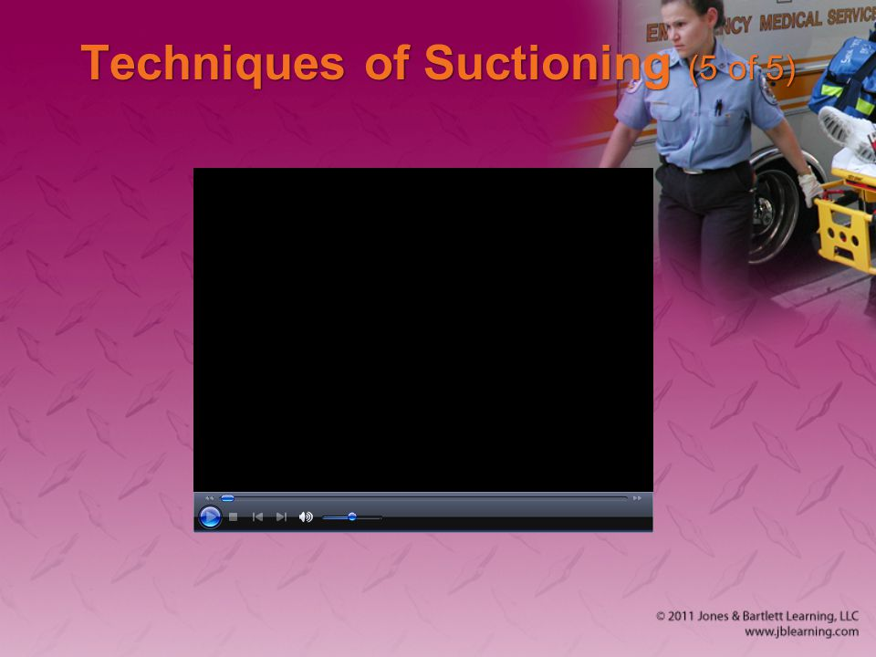 Techniques of Suctioning (5 of 5)