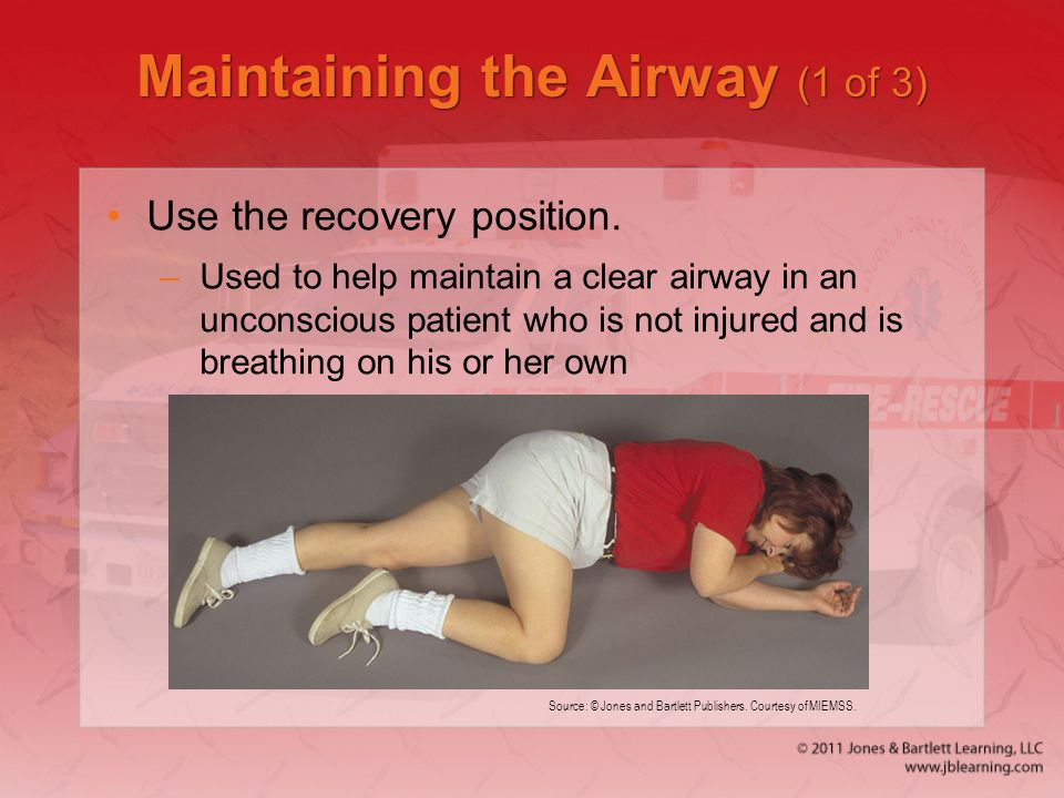 Maintaining the Airway (1 of 3)